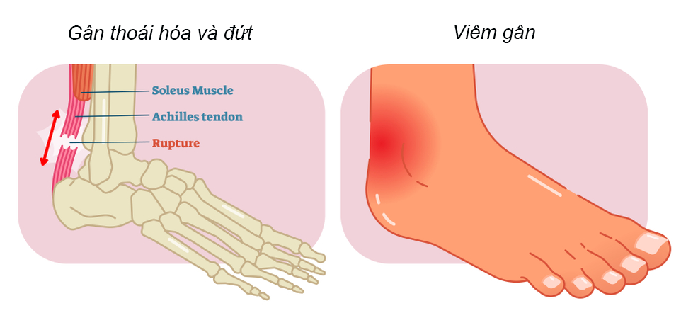 achilles-tendon-tupture-dut-gan-got-chan