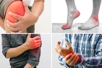 Hiệu quả và độ an toàn trong điều trị của mucopolysacarit, collagen type 1 và vitamin C đường uống  ở bệnh nhân mắc bệnh lý gân